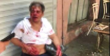 Çocuğu taciz ettiği iddia edilen şahıs önce dövüldü sonra bıçaklandı