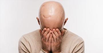Kemoterapiyle saç dökülmesi sona eriyor